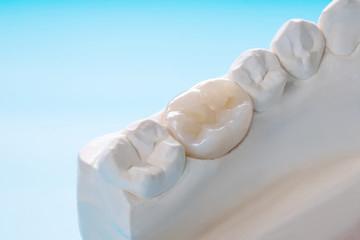 治療後の歯をまもるために