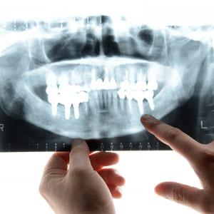 虫歯治療、気になる歯のご相談など