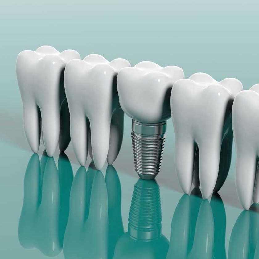 人工の歯で長く健康に